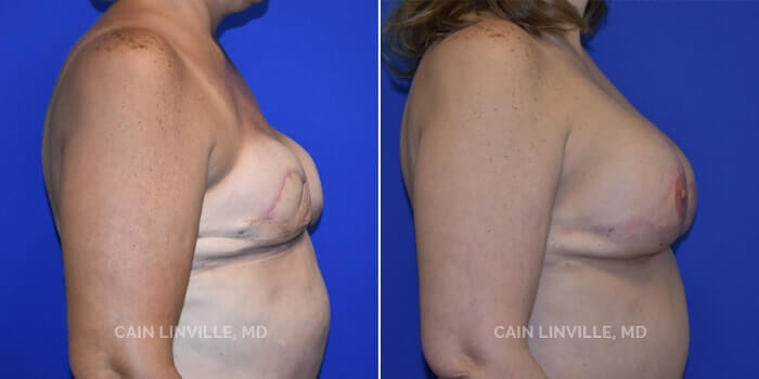 Breast Reconstruction Before And After Patient 6C