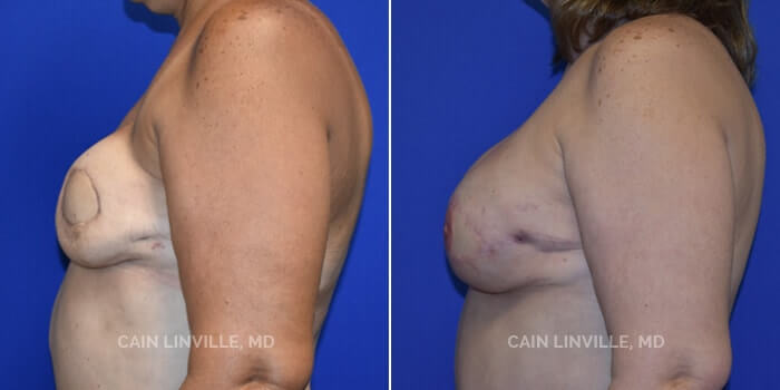 Breast Reconstruction Before And After Patient 6E