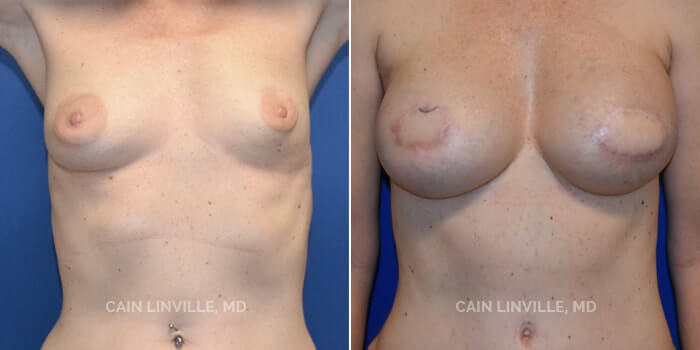 Breast Reconstruction Before And After Patient 7A