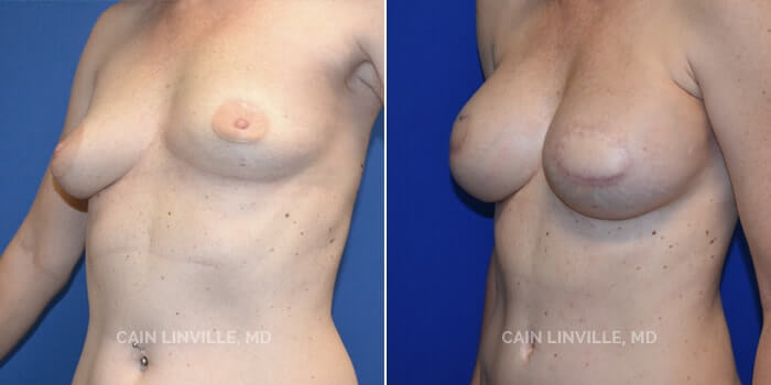 Breast Reconstruction Before And After Patient 7B