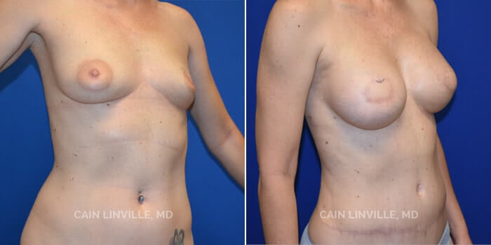Breast Reconstruction Before And After Patient 7D