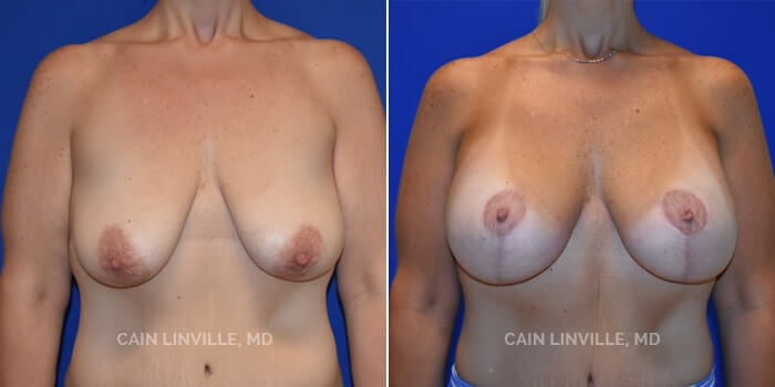 Breast Lift Before And After Patient 2A