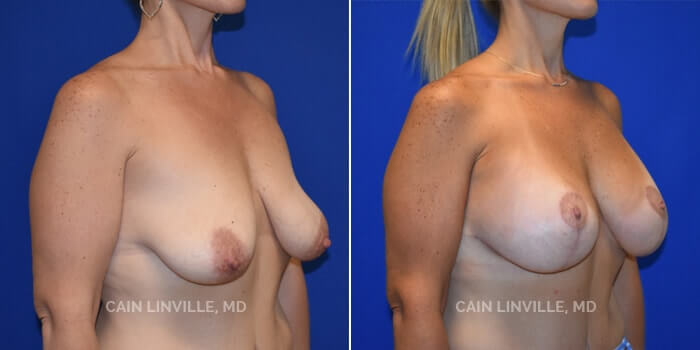Breast Lift Before And After Patient 2B