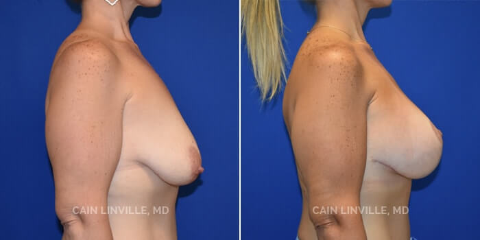 Breast Lift Before And After Patient 2C