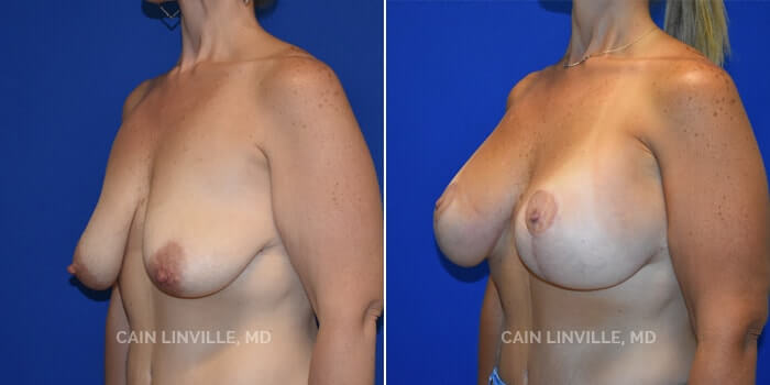 Breast Lift Before And After Patient 2D