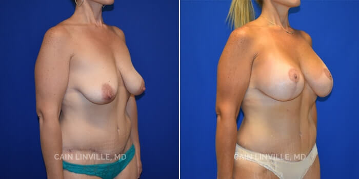 Mommy Makeover Before And After Patient 4B