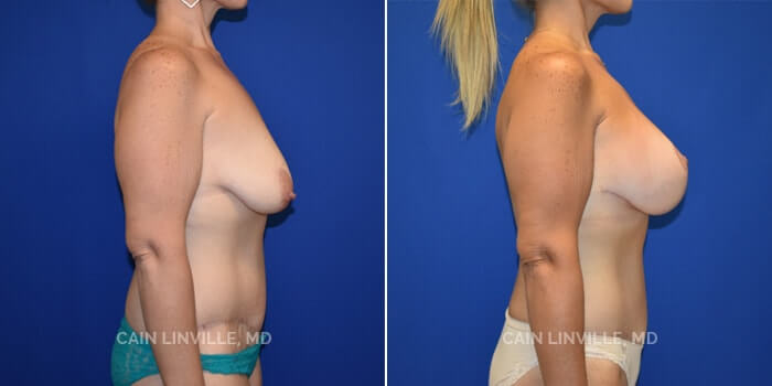 Mommy Makeover Before And After Patient 4C