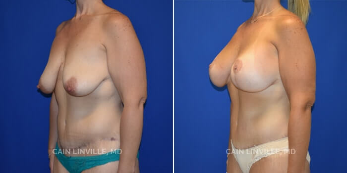 Mommy Makeover Before And After Patient 4D