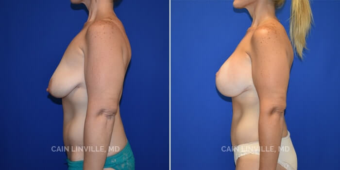 Mommy Makeover Before And After Patient 4E