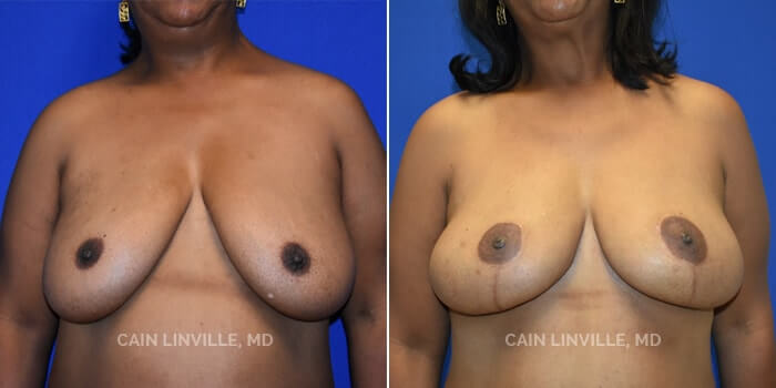 Breast Reconstruction Before And After Patient 9A