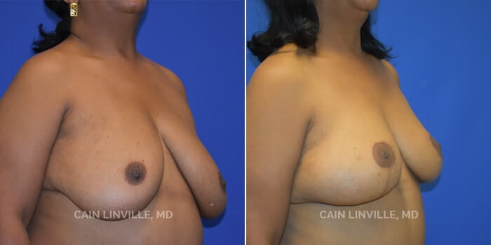 Breast Reconstruction Before And After Patient 9B