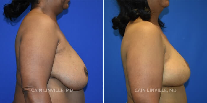 Breast Reconstruction Before And After Patient 9C