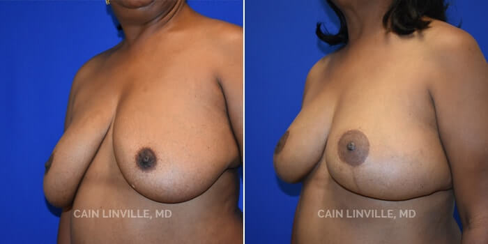 Breast Reconstruction Before And After Patient 9D
