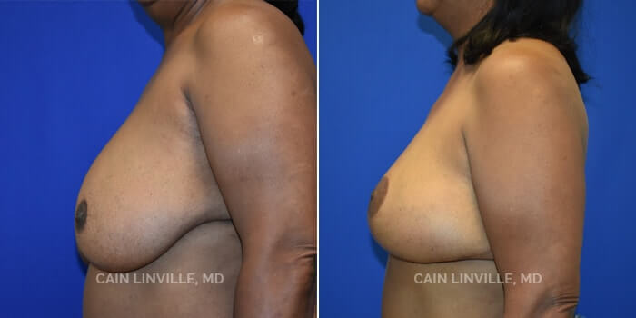 Breast Reconstruction Before And After Patient 9E