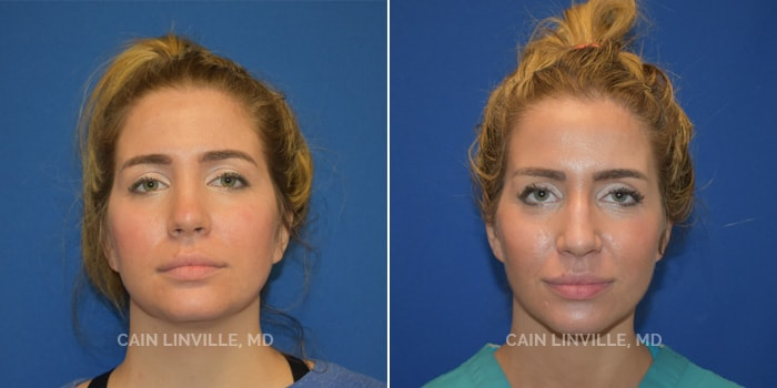FaceTite Before And After Patient 1A