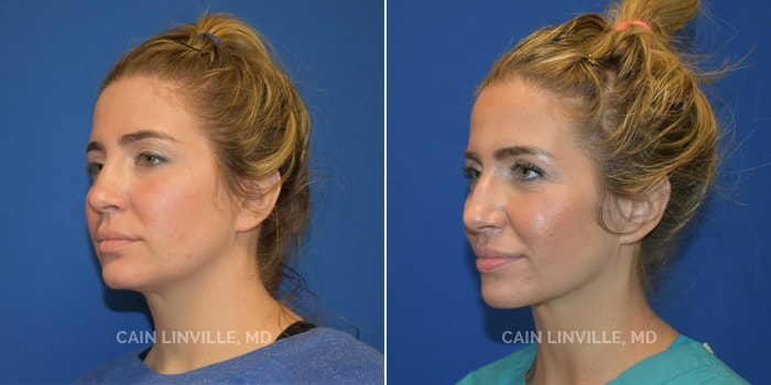 FaceTite Before And After Patient 1B
