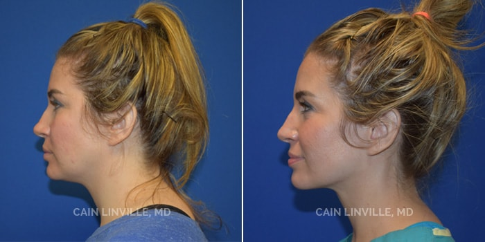 FaceTite Before And After Patient 1C