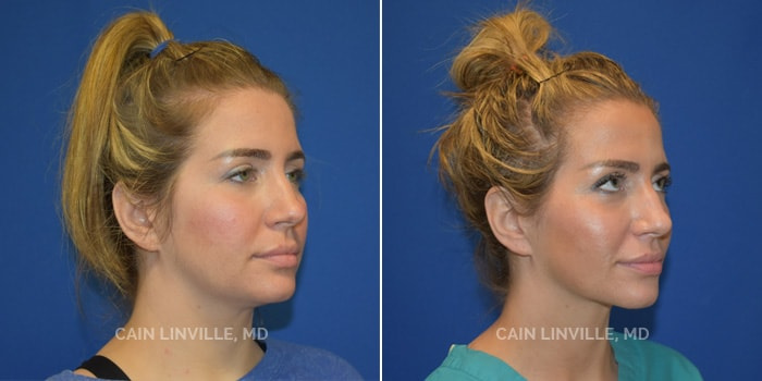 FaceTite Before And After Patient 1D