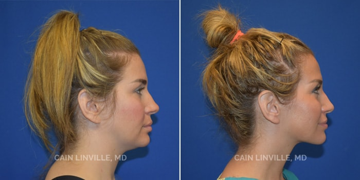FaceTite Before And After Patient 1E