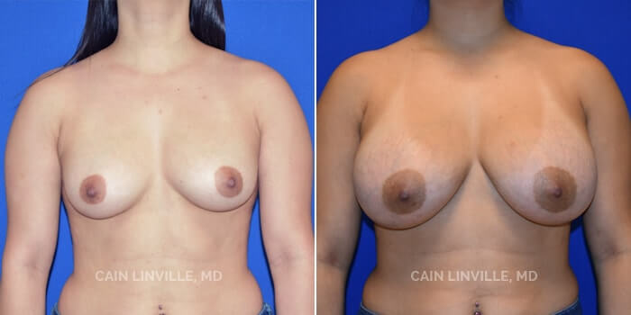Breast Augmentation Before And After Patient 20A