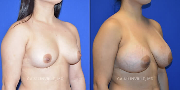 Breast Augmentation Before And After Patient 20B