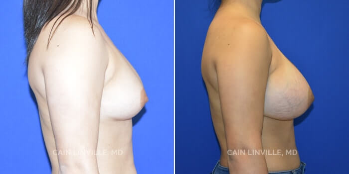 Breast Augmentation Before And After Patient 20C