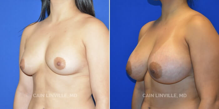 Breast Augmentation Before And After Patient 20D