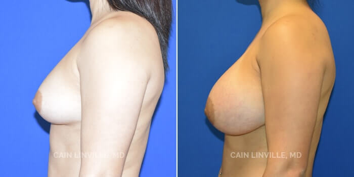 Breast Augmentation Before And After Patient 20E
