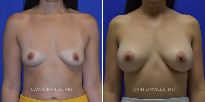 Breast Augmentation Before And After Patient 21A