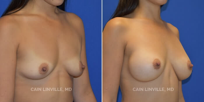 Breast Augmentation Before And After Patient 21D