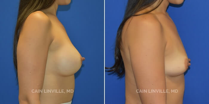 Breast Augmentation Before And After Patient 21E