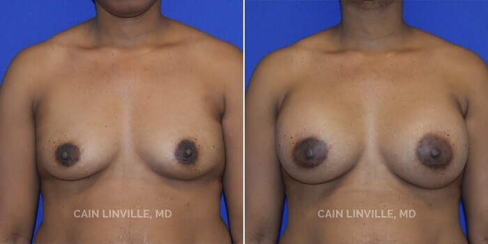 Breast Augmentation Before And After Patient 22A