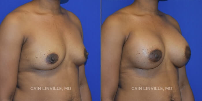 Breast Augmentation Before And After Patient 22B