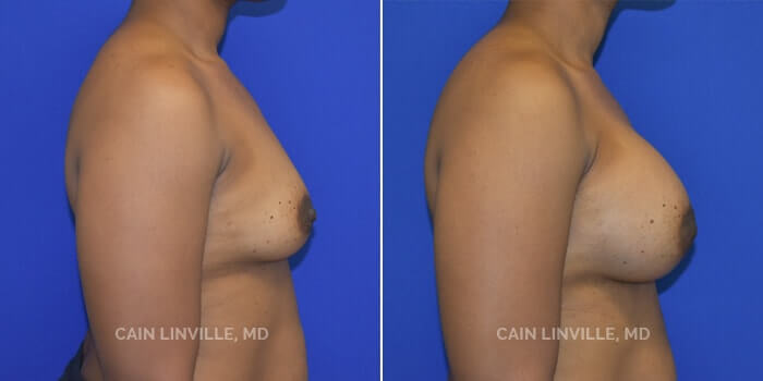 Breast Augmentation Before And After Patient 22C