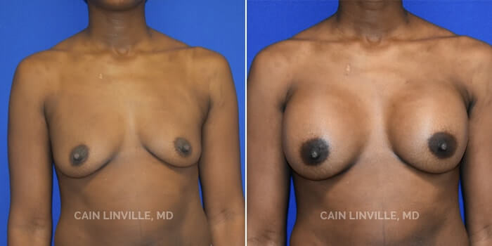 Breast Augmentation Before And After Patient 23A
