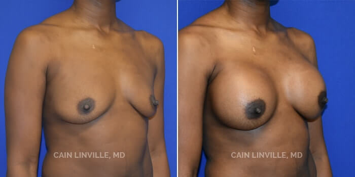 Breast Augmentation Before And After Patient 23B