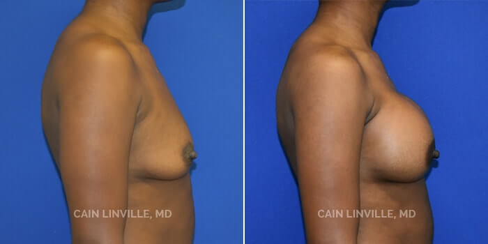 Breast Augmentation Before And After Patient 23C
