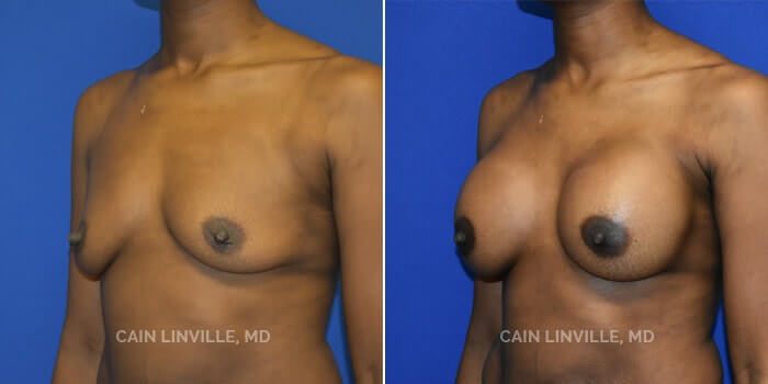 Breast Augmentation Before And After Patient 23D