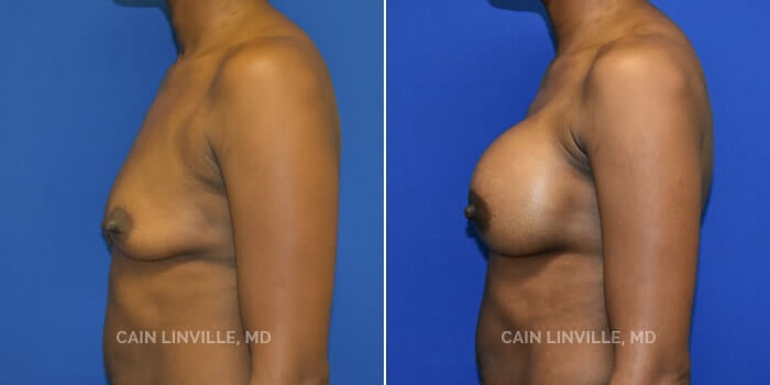 Breast Augmentation Before And After Patient 23E