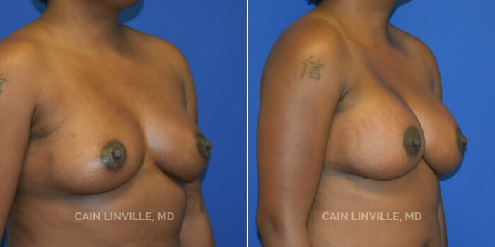 Breast Augmentation Before And After Patient 24B