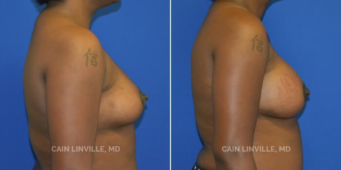 Breast Augmentation Before And After Patient 24C