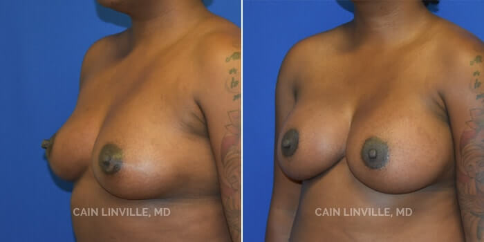 Breast Augmentation Before And After Patient 24D