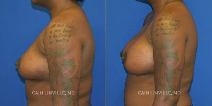 Breast Augmentation Before And After Patient 24E