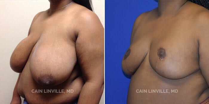 Breast Reduction Before And After Patient 5D