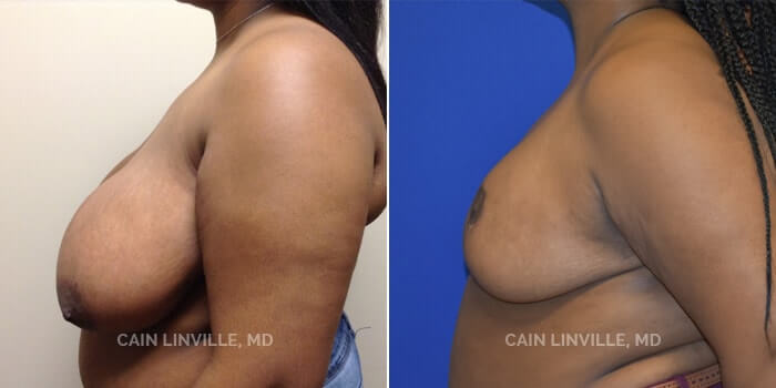 Breast Reduction Before And After Patient 5E