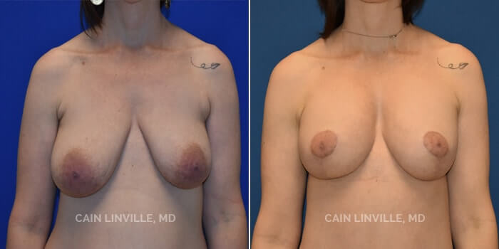 Breast Lift Before And After Patient 3A