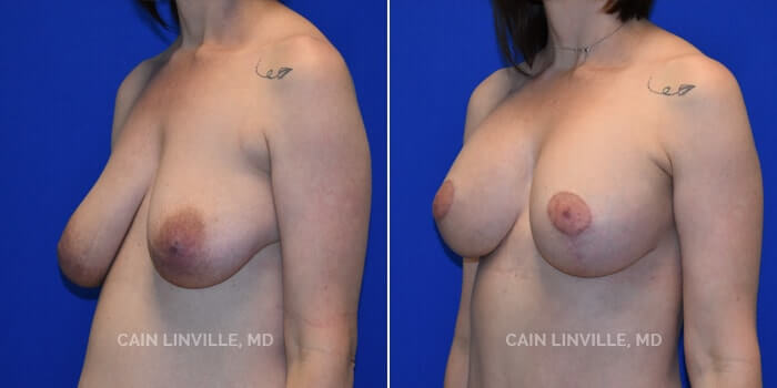 Breast Lift Before And After Patient 3B