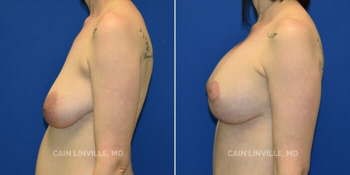 Breast Lift Before And After Patient 3C