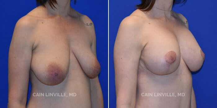 Breast Lift Before And After Patient 3D
