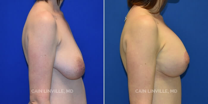 Breast Lift Before And After Patient 3E